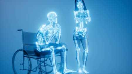 man in wheelchair with visible bones Stock Footage