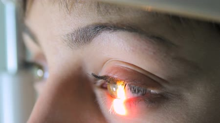 vizyon : Scanning the retina among women with green eyes special ophthalmic device close-up Stok Video
