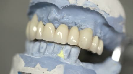 implantation : dental dentist objects implants