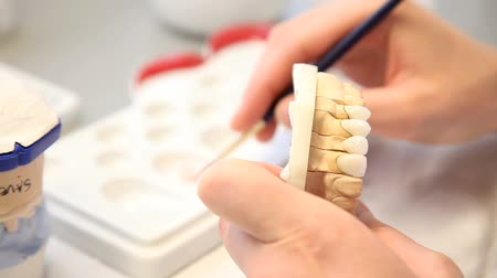 насаждение : dental dentist objects implants