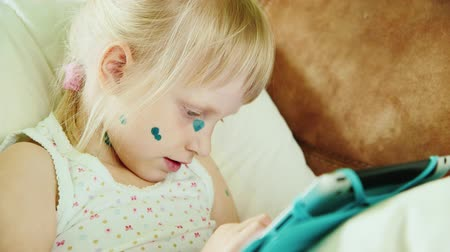chickenpox : Girl suffers chickenpox. Her face in the green points. Playing on the tablet