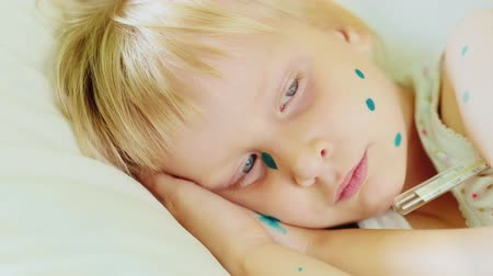 chickenpox : Portrait of a very sad girl in bed. She is ill, lying with a thermometer. Her face in the green points