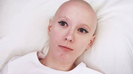 rak : Top view of a cancer patient woman lying in the bed, wakes up and is scared and concerned Wideo