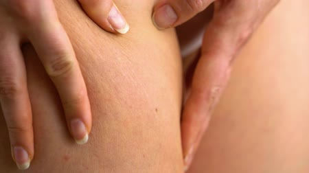 esneme : Female hip stretch marks on the skin Stok Video