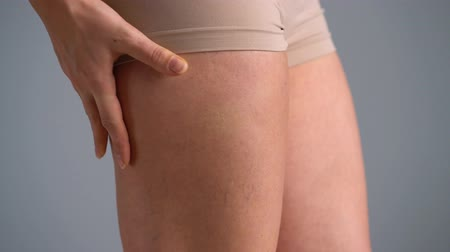 consciente : Female hip stretch marks and cellulite on the skin Vídeos
