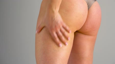 celulitida : Woman rubs into the skin of the buttocks and legs anti-cellulite cream