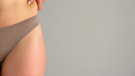 markolat : Female hip stretch marks and cellulite on the skin Stock mozgókép