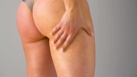 lesion : Woman rubs into the skin of the buttocks and legs anti-cellulite cream