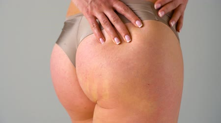 lesion : Female hip stretch marks and cellulite on the skin Stock Footage