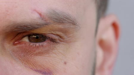 Close-up of handsome male eye is looking at the camera - the eyebrow is cut and the bruise under the eye Stock Footage