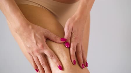 lesion : Woman compressing thigh skin and checks for stretch marks and cellulite Stock Footage
