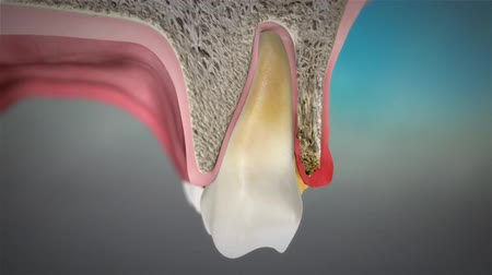 molar : swelling of the gums animation