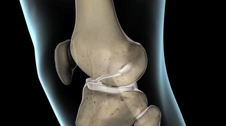 gescheurd : Anterior Cruciate Ligament, The Knee Joint Stockvideo