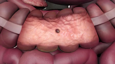 układ pokarmowy : 3D Animation Showing A Polyp Inside Of The Colon