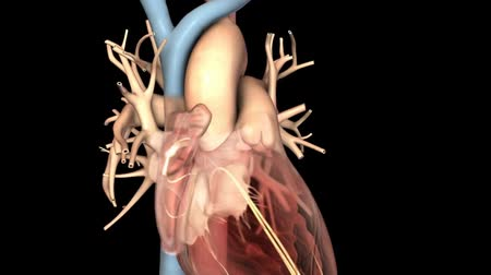 pacemaker : Atrial Fibrillation 3D Animation Stock Footage