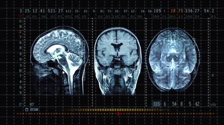 usg : 3D Scan Of A Brain, Close Up. Special Equipment Scans A Patients Brain At A
