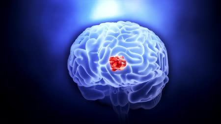 oncology : tumor in the brain