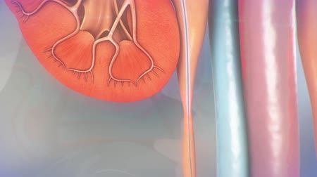 mocz : Ureteral Stent Procedure Animation