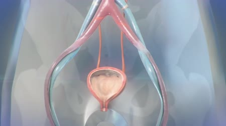 почки : Ureteral Stent Procedure Animation