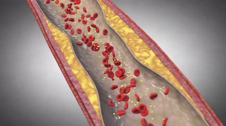 angioplasty : vascular narrowing animation