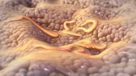 solucan : worm in the digestive system Stok Video