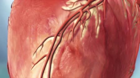 coronary : Acute coronary syndrome Stock Footage