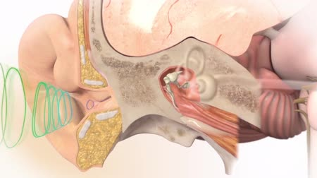 membrane : An animation shows the inner ear as well as damage