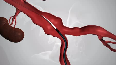 oběh : Complete endovascular repair of the in frarenal aortic aneurysm