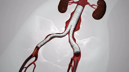 Complete endovascular repair of the in frarenal aortic aneurysm