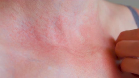 arranhão : Woman scratch the itch with hand, Neck. Red spots on the neck, allergies, psoriasis, insect bite. Malaria.
