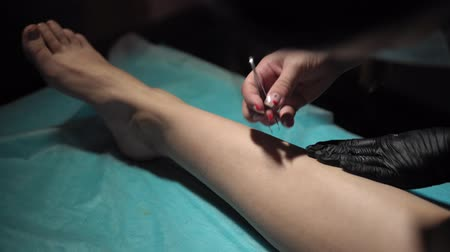 sugaring : Cosmetologist with tweezers removes small hairs left after epilation with a thick sugar paste. Stock Footage