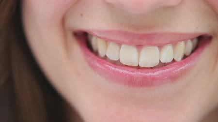 зубы : Close-up of a happy brunette woman smiling