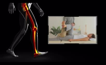 boné : Clips of woman getting physiotherapy on balck digital background with walking skeleton