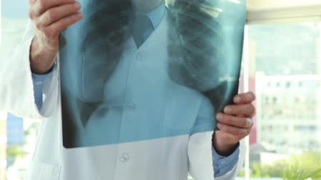 diagnóstico : Hd video of serious doctor looking at Xray