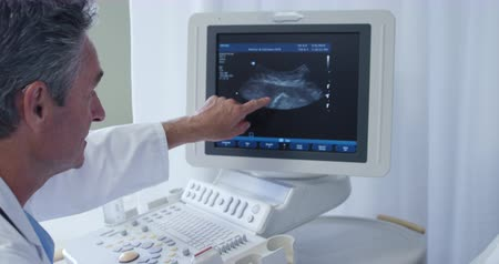 sonography : Side view of a Caucasian male doctor in a hospital pointing at the screen of a ultra sound scan monitor and talking Stock Footage