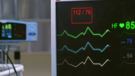 ér : Cinemagraph of pulse checking E.C.G Monitor. Monitor that shows heartbeat activity.
