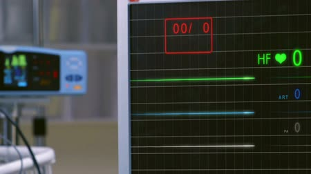 ér : Cinemagraph of pulse checking E.C.G Monitor. Monitor that shows a lack of palpitations.