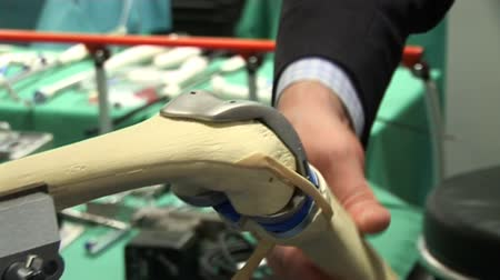 kolano : Model of a knee operation