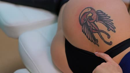 działka : Laser tattoo removal close up video