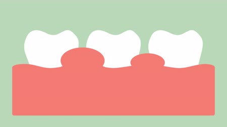 gingivitis or gum disease, gum inflammation before periodontal disease - dental cartoon vector flat style render 2d footage animation, Стоковые видеозаписи