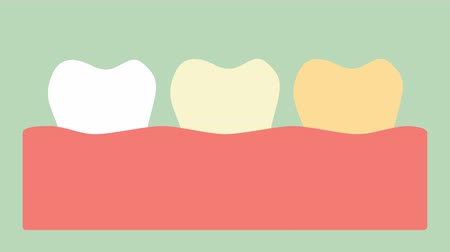 white to yellow teeth, hygiene and dental health care concept - tooth cartoon vector flat style render 2d footage animation
