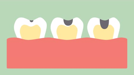 stages of tooth decay or dental caries - teeth cartoon  flat render 2d animation in 4K