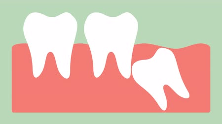 wisdom tooth ( angular or mesial impaction ) - dental cartoon  flat render 2d animation in 4K