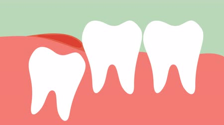inflammation of wisdom tooth ( angular or mesial impaction ) - dental cartoon  flat render 2d animation in 4K Стоковые видеозаписи