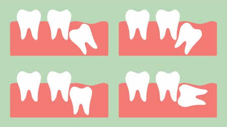 type of wisdom tooth - mesial impaction, distal impaction, horizontal impaction, vertical impaction - dental cartoon vector flat style render 2d animation in 4K