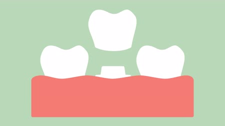 dental crown, installation process and change of teeth - dental cartoon vector flat style render 2d animation in 4K Стоковые видеозаписи