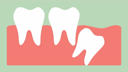 wisdom tooth ( distal impaction ) - dental cartoon vector flat style render 2d animation in 4K