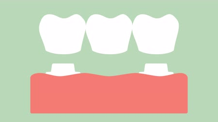 dental crown with bridge, installation process and change of teeth - tooth cartoon vector flat style render 2d animation in 4K