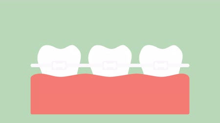 orthodontic teeth or dental braces - dental cartoon vector flat style render 2d animation in 4K Стоковые видеозаписи
