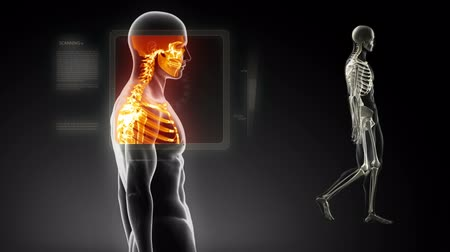 painéis : Good posture concept – x-ray spine scan